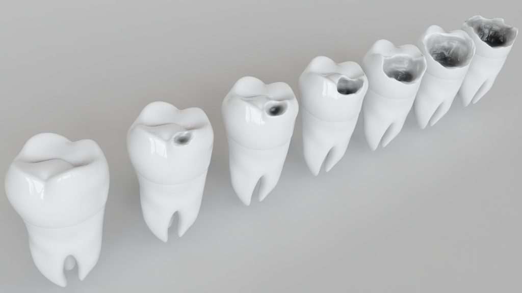Laga tänder i Malmö